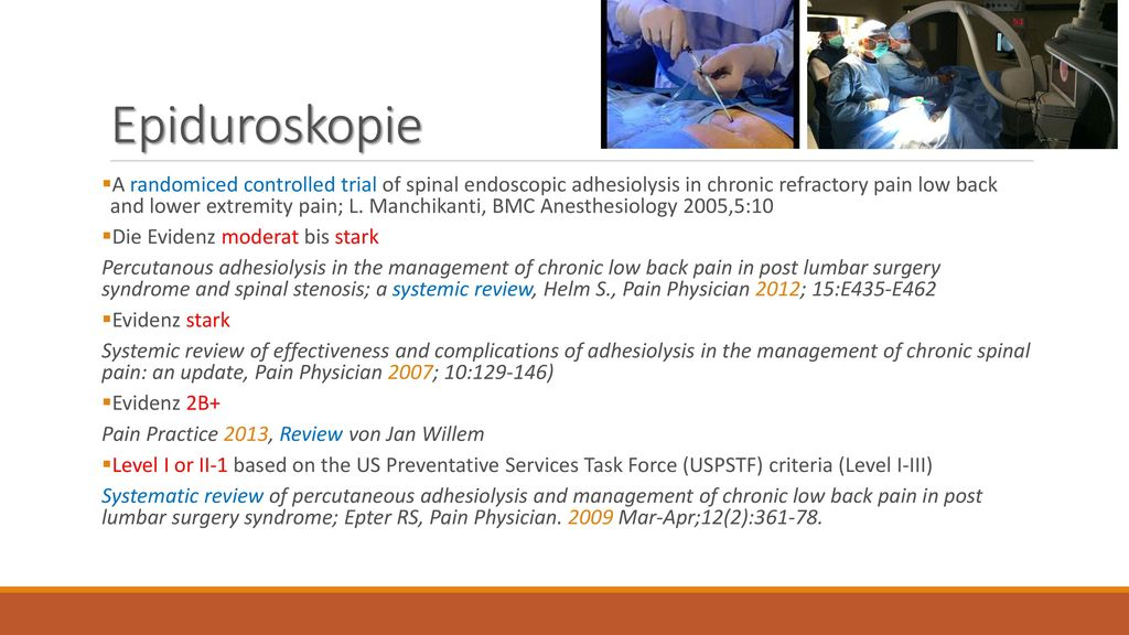 Epiduroskopie