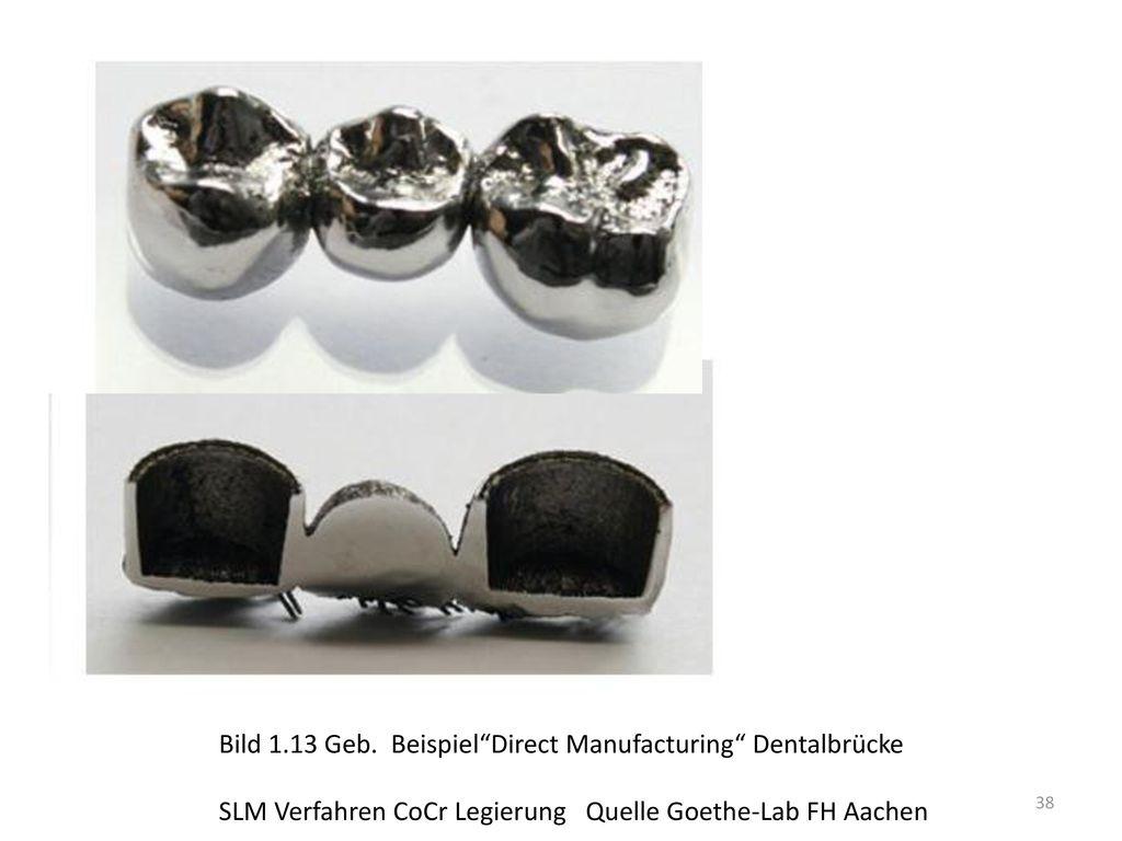 Bild 1.13 Geb. Beispiel Direct Manufacturing Dentalbrücke