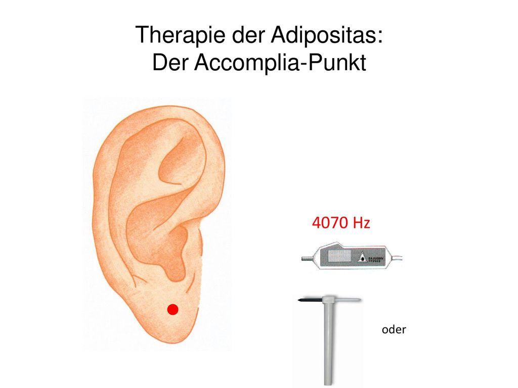 Therapie der Adipositas: Der Accomplia-Punkt