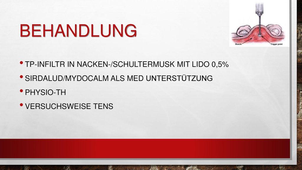 Behandlung TP-infiltr in Nacken-/Schultermusk mit Lido 0,5%