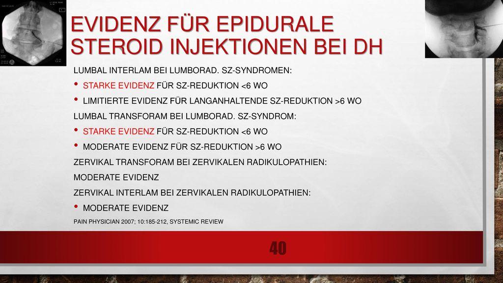 Evidenz für epidurale Steroid injektionen bei DH