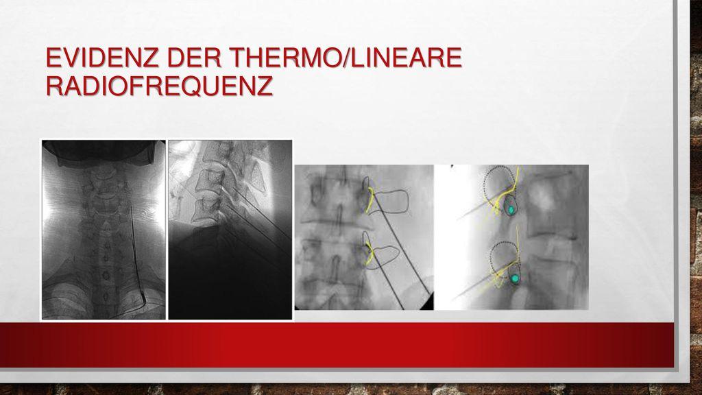 Evidenz der Thermo/lineare Radiofrequenz