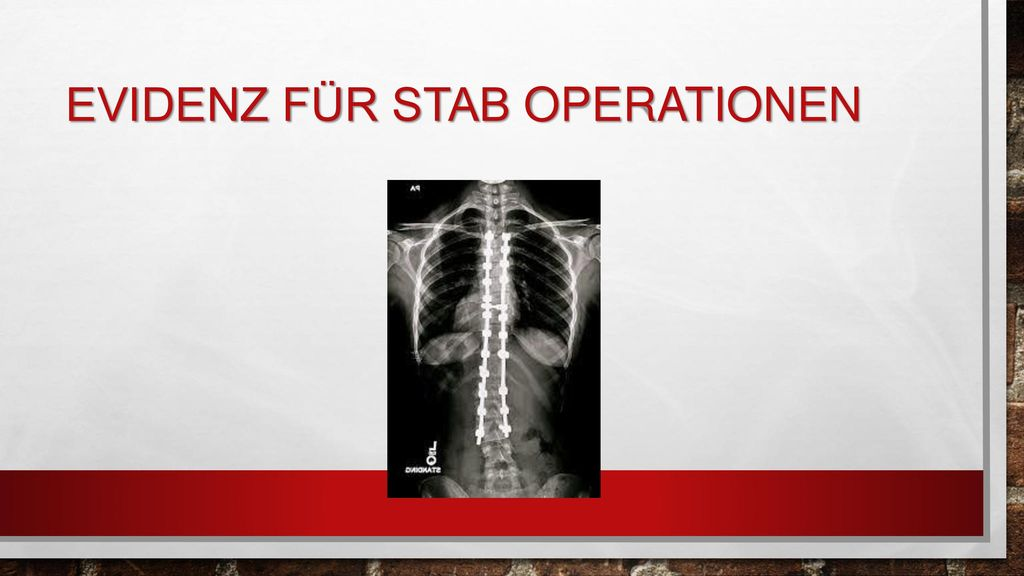 Evidenz für stab operationen