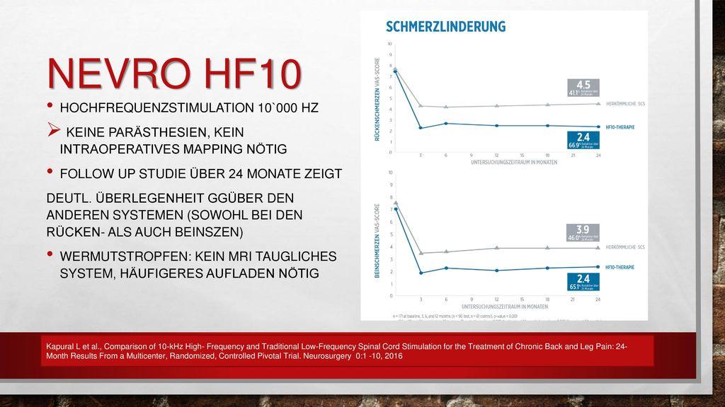 Nevro HF10 Hochfrequenzstimulation 10`000 Hz