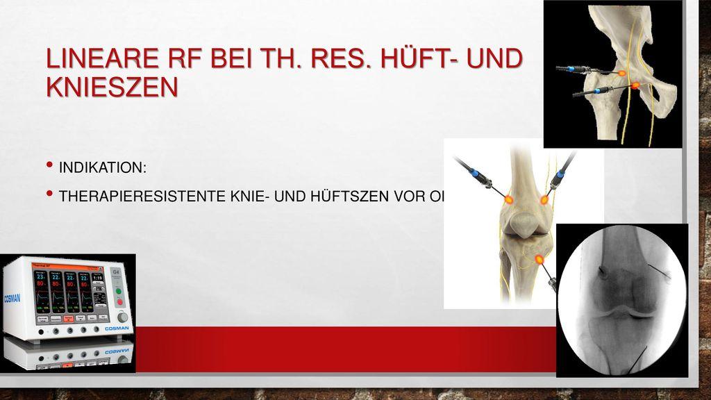 Lineare RF bei th. Res. Hüft- und knieszen