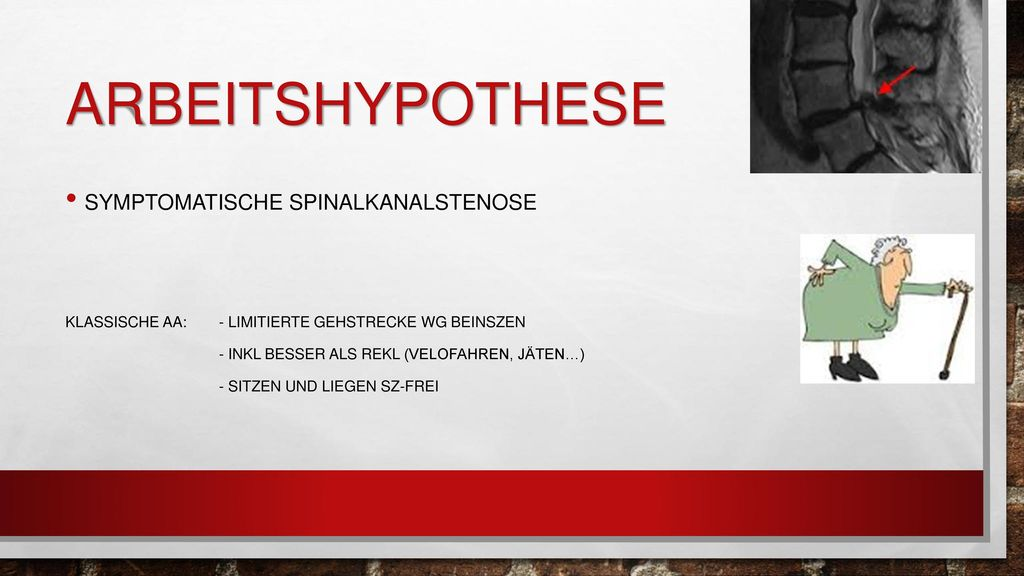 arbeitshypothese Symptomatische Spinalkanalstenose