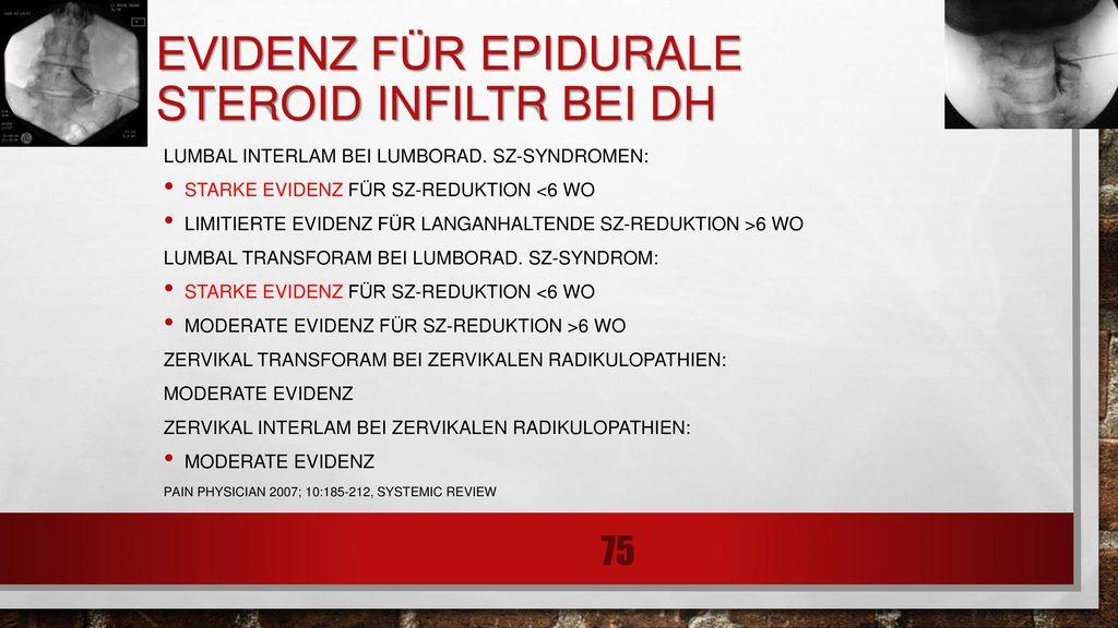 Evidenz für epidurale Steroid infiltr bei DH