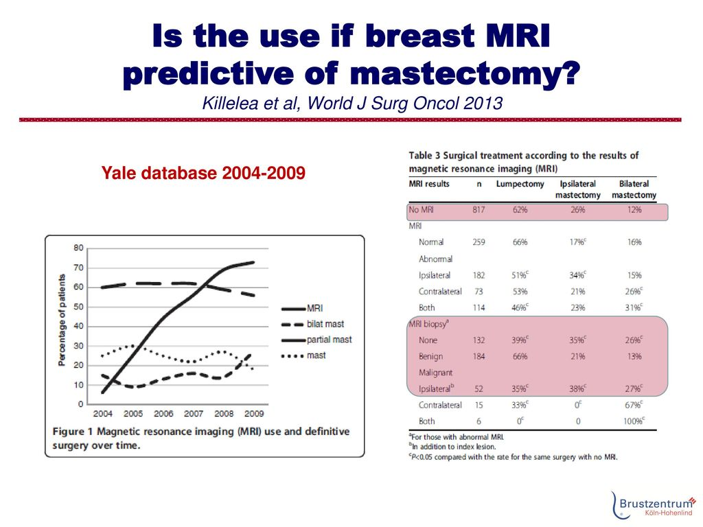 Is the use if breast MRI predictive of mastectomy
