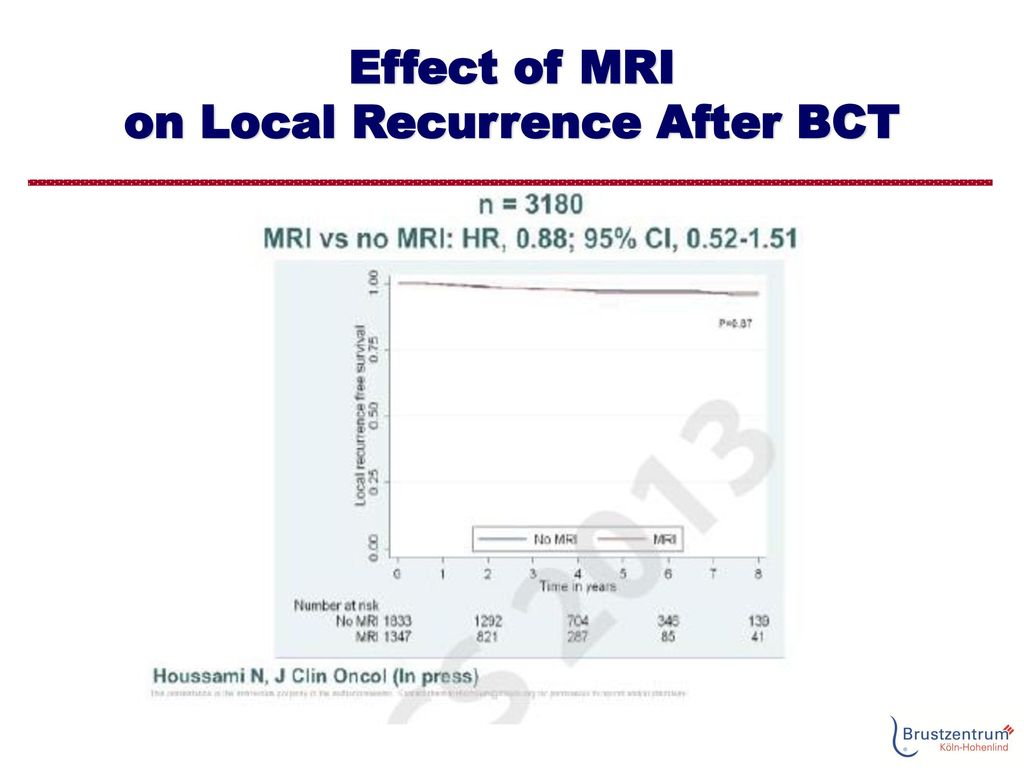 Effect of MRI on Local Recurrence After BCT