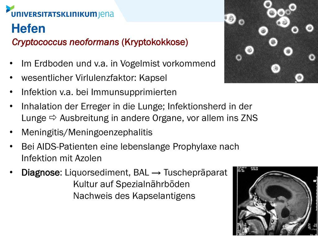 Hefen Cryptococcus neoformans (Kryptokokkose)