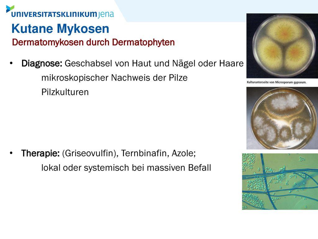 Kutane Mykosen Dermatomykosen durch Dermatophyten