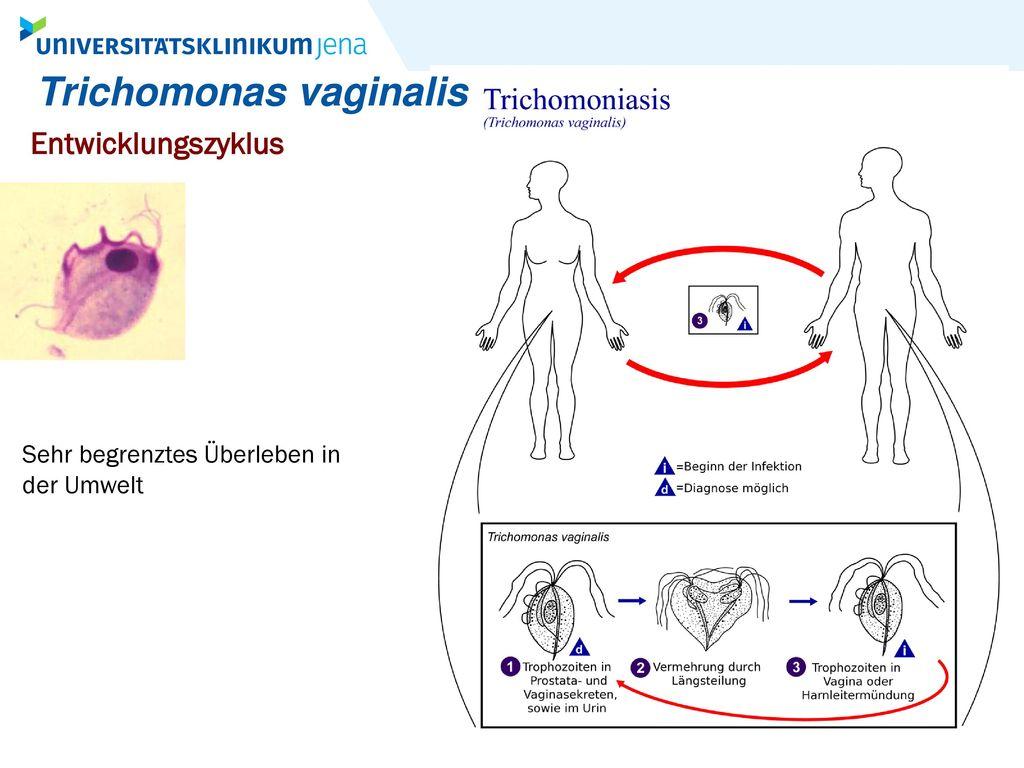Trichomonas vaginalis