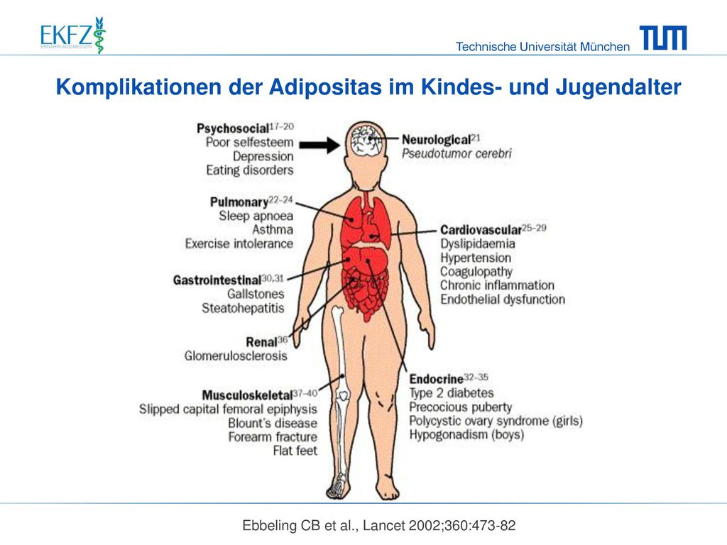 Komplikationen der Adipositas im Kindes- und Jugendalter