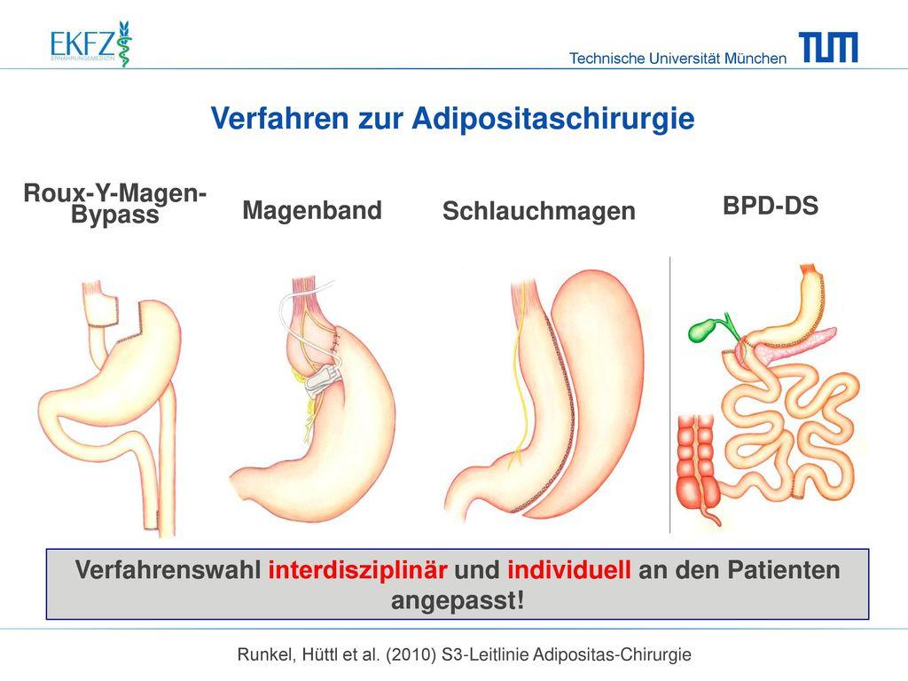 Verfahren zur Adipositaschirurgie