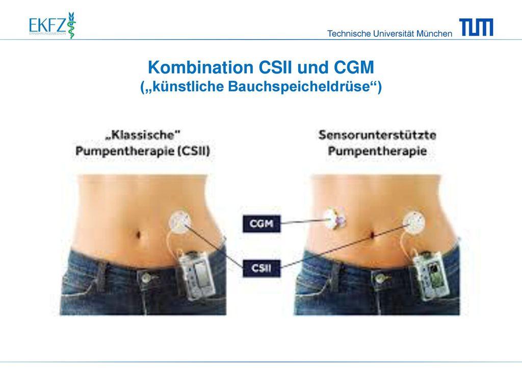"""Kombination CSII und CGM (""""künstliche Bauchspeicheldrüse )"""