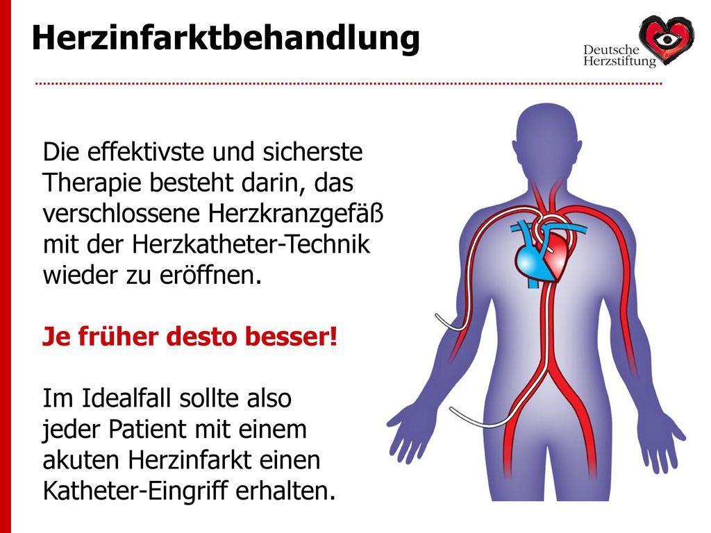 Herzinfarktbehandlung