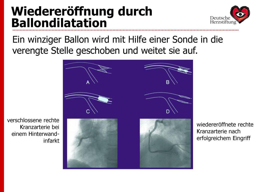 Wiedereröffnung durch Ballondilatation