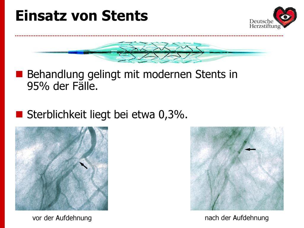 Einsatz von Stents Behandlung gelingt mit modernen Stents in 95% der Fälle. Sterblichkeit liegt bei etwa 0,3%.