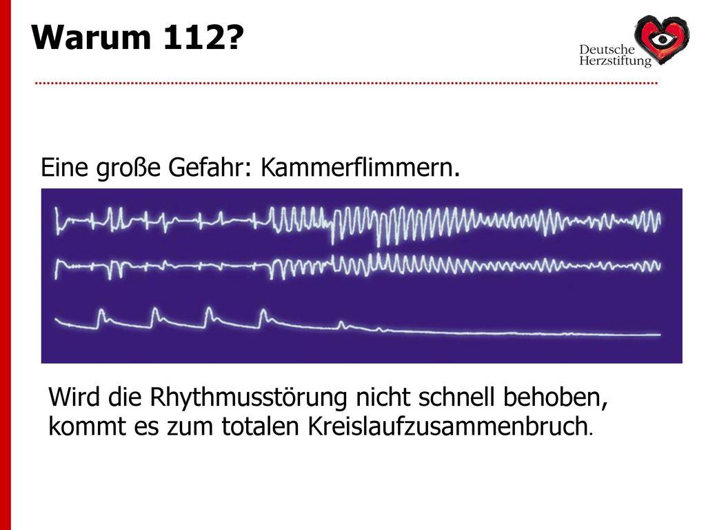 Warum 112 Eine große Gefahr: Kammerflimmern.