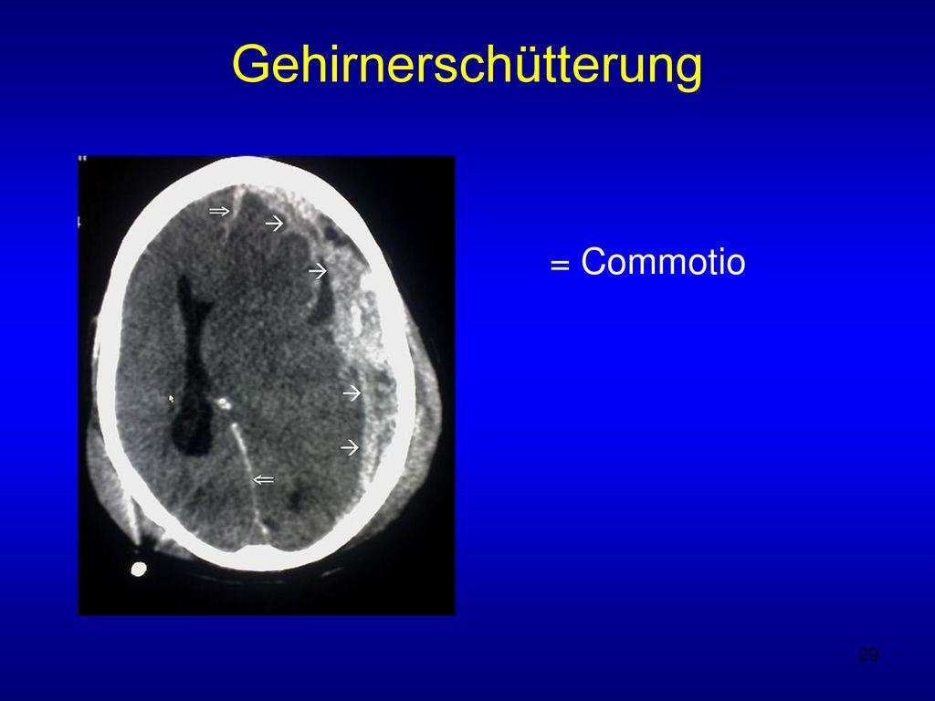 Gehirnerschütterung = Commotio