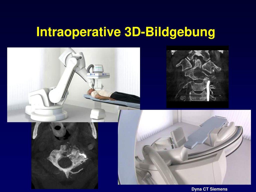 Intraoperative 3D-Bildgebung
