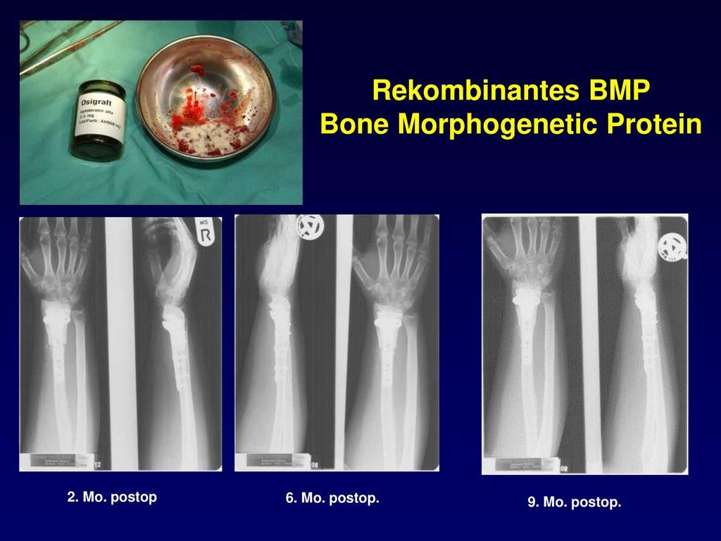 Rekombinantes BMP Bone Morphogenetic Protein