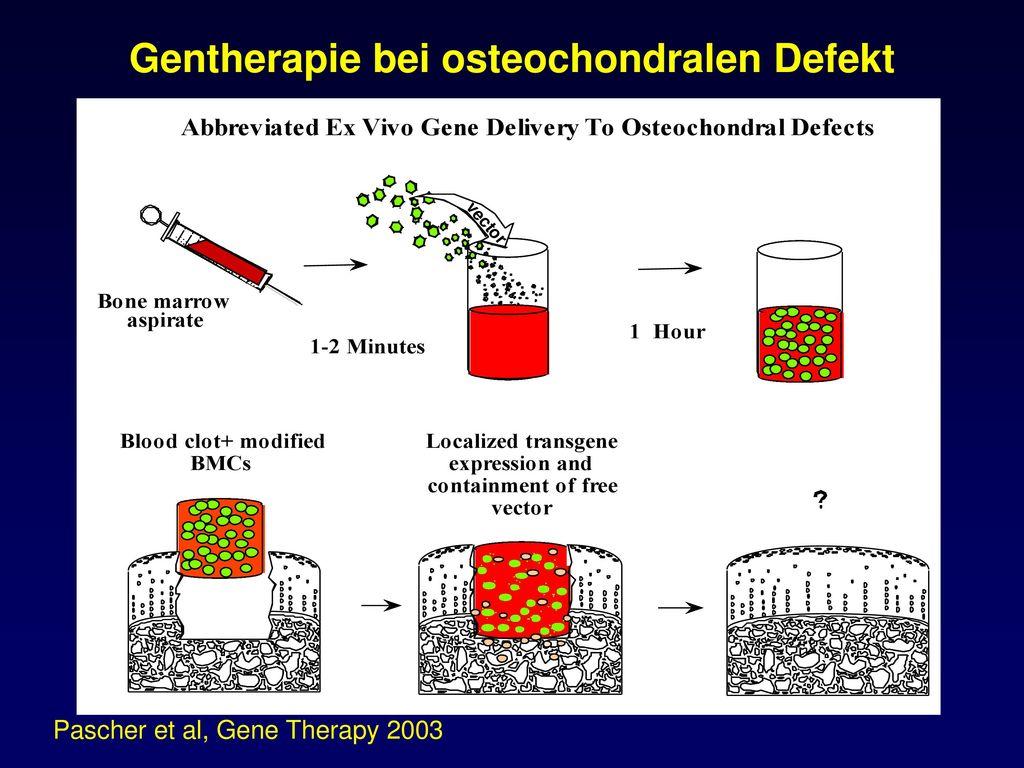 Gentherapie bei osteochondralen Defekt