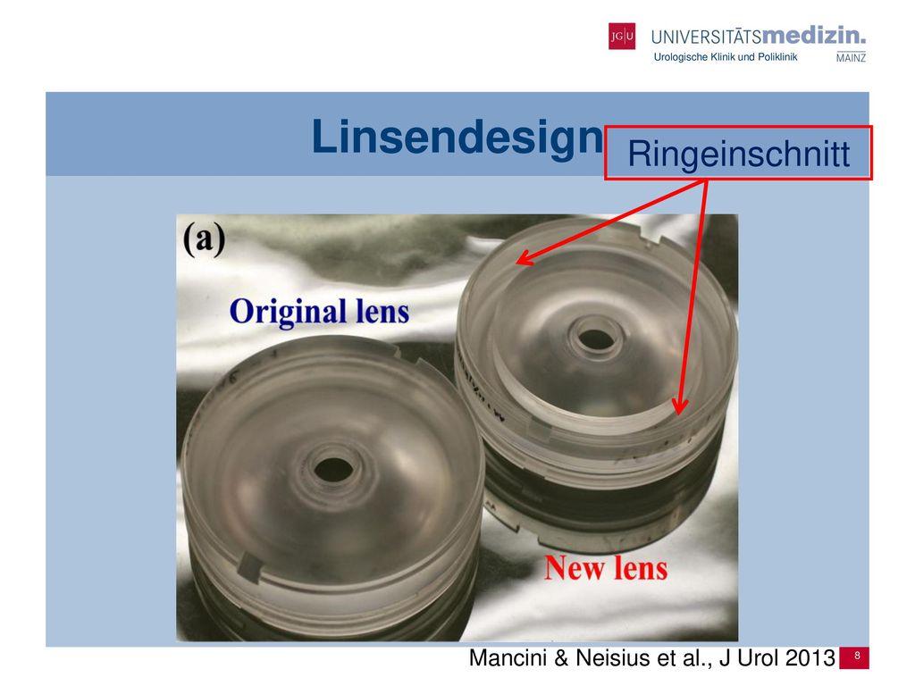 Linsendesign Ringeinschnitt Mancini & Neisius et al., J Urol 2013