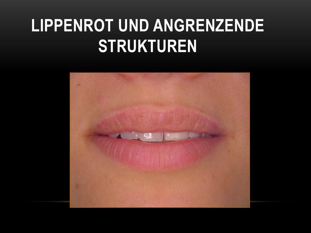 Lippenrot und angrenzende Strukturen