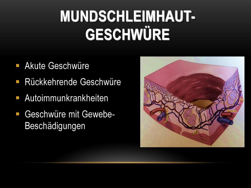 Mundschleimhaut-Geschwüre