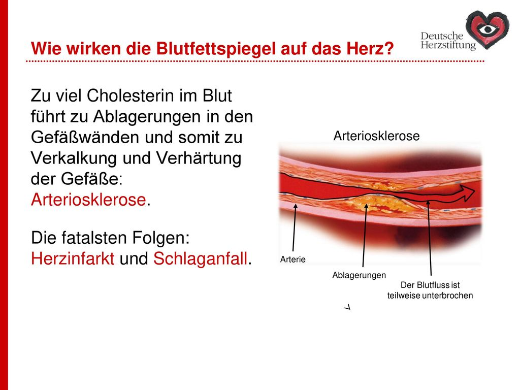 Wie wirken die Blutfettspiegel auf das Herz