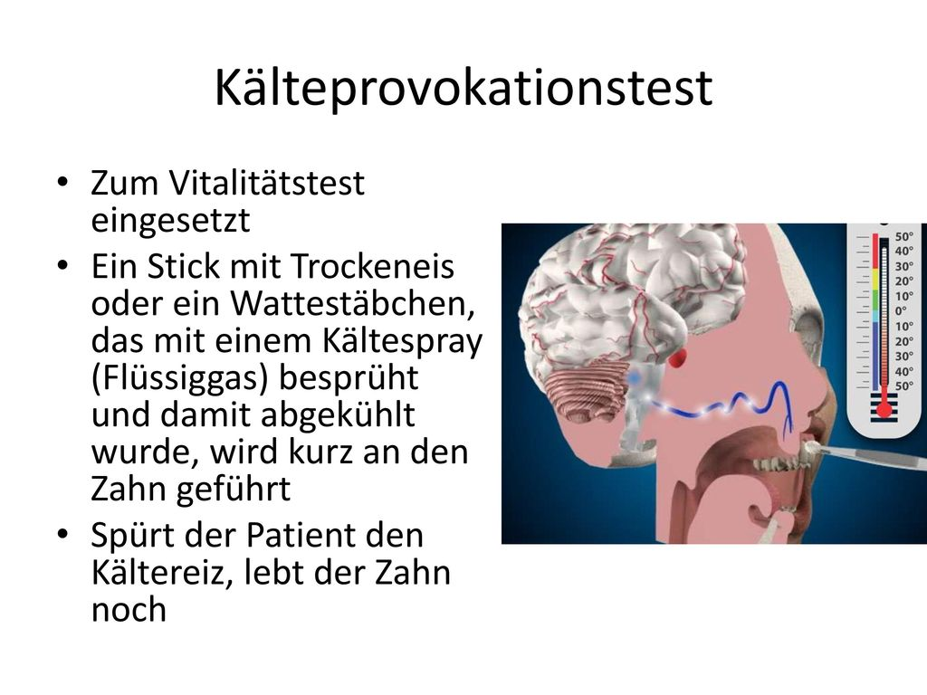 Kälteprovokationstest