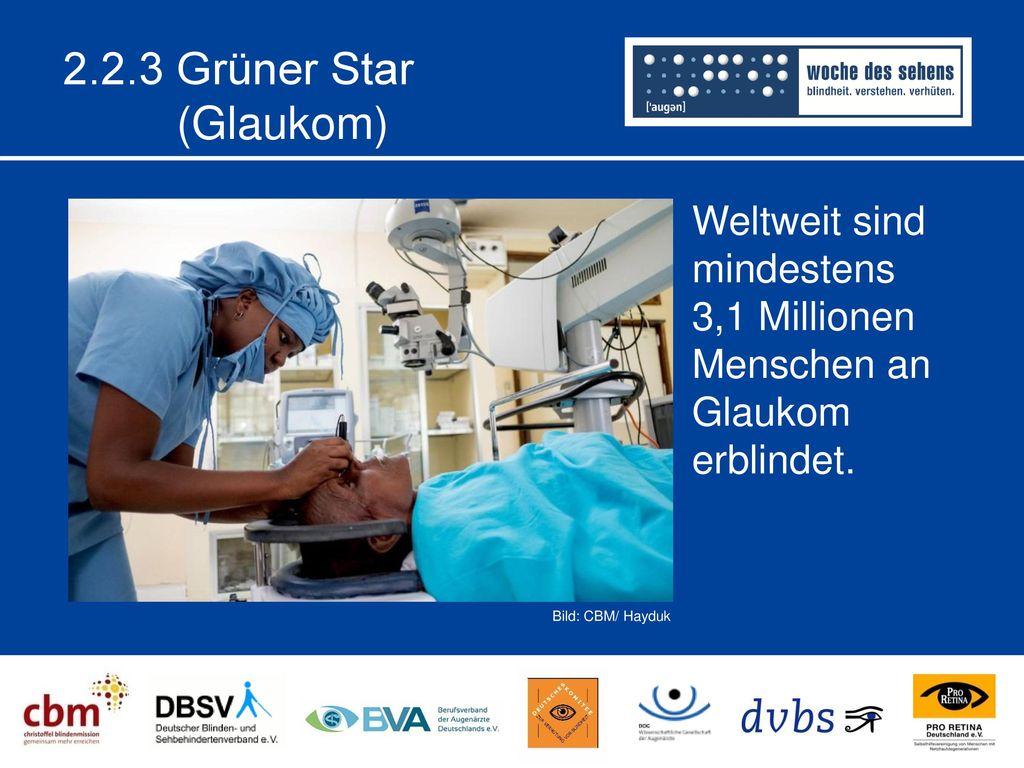 2.2.3 Grüner Star (Glaukom) Weltweit sind mindestens 3,1 Millionen Menschen an Glaukom erblindet.