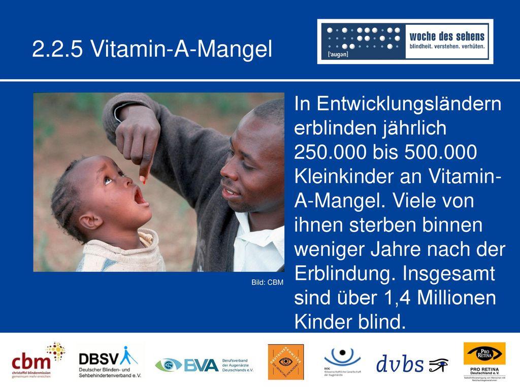 2.2.5 Vitamin-A-Mangel