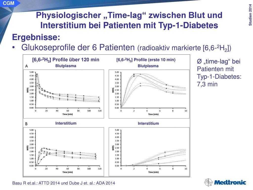 """CGM Physiologischer """"Time-lag zwischen Blut und Interstitium bei Patienten mit Typ-1-Diabetes. Schlussfolgerung:"""