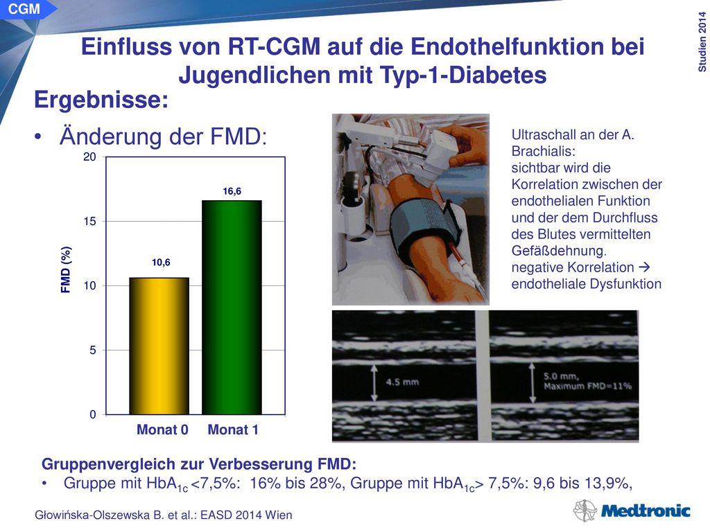 CGM Einfluss von RT-CGM auf die Endothelfunktion bei Jugendlichen mit Typ-1-Diabetes. Schlussfolgerung: