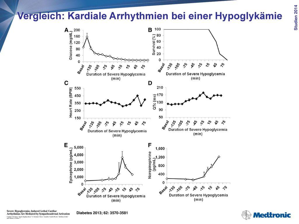 Vergleich: Kardiale Arrhythmien bei einer Hypoglykämie