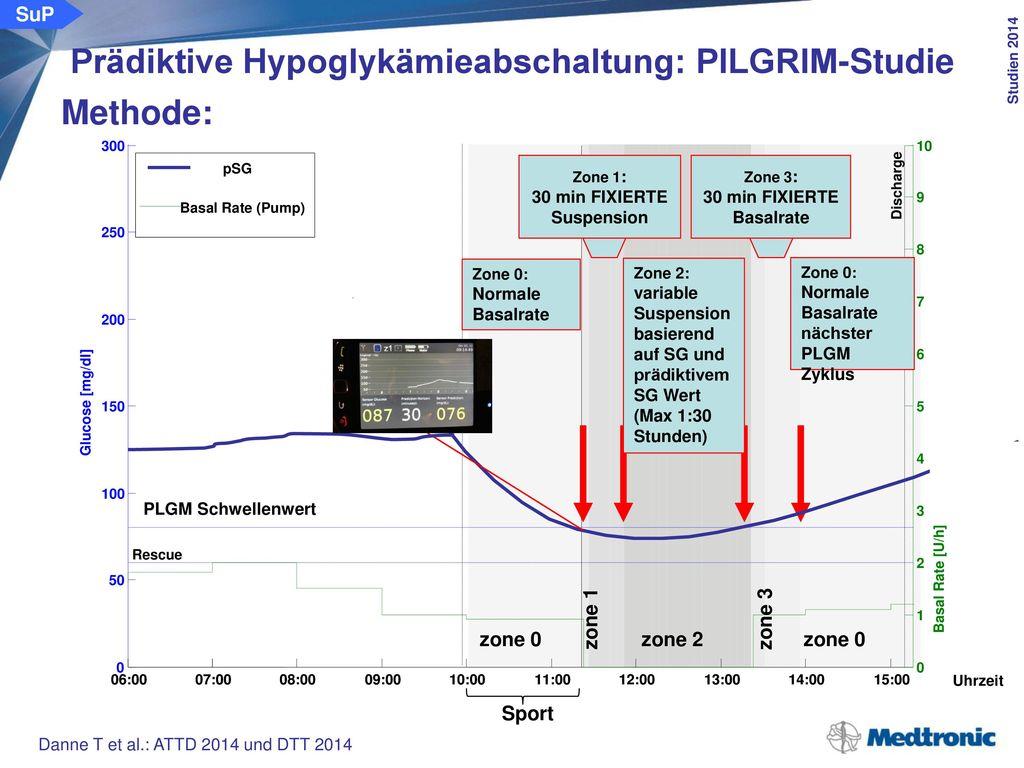 Prädiktive Hypoglykämieabschaltung: PILGRIM-Studie