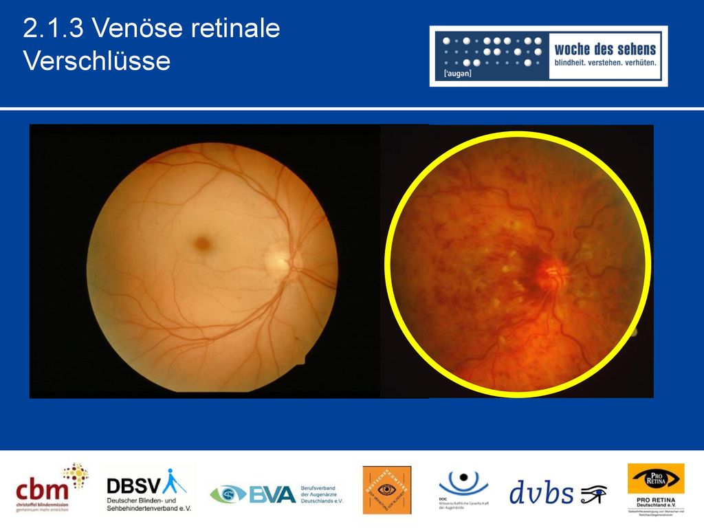 2.1.3 Venöse retinale Verschlüsse