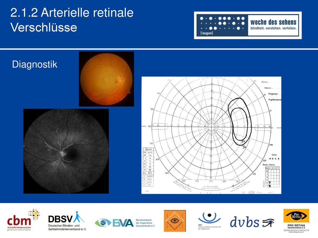 2.1.2 Arterielle retinale Verschlüsse Diagnostik