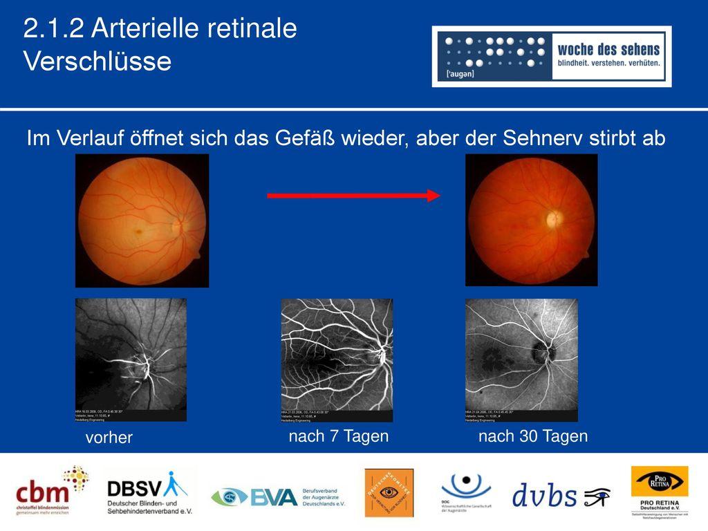 2.1.2 Arterielle retinale Verschlüsse