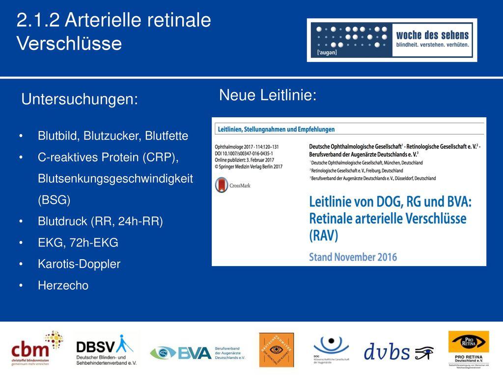 2.1.2 Arterielle retinale Verschlüsse Neue Leitlinie: Untersuchungen: