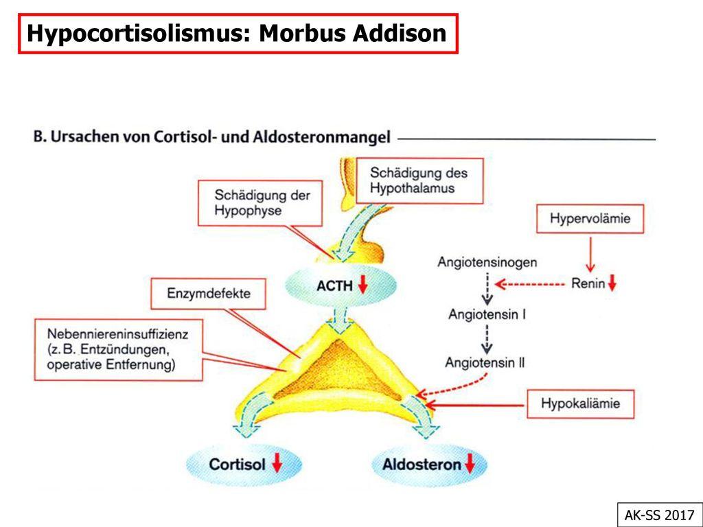 Hypocortisolismus: Morbus Addison