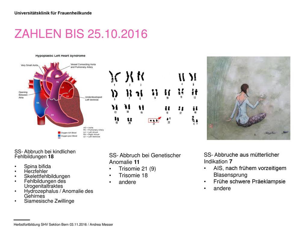 Zahlen bis 25.10.2016 SS- Abbruch bei Genetischer Anomalie 11