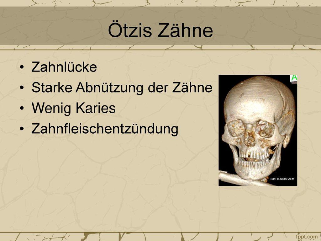 Ötzis Zähne Zahnlücke Starke Abnützung der Zähne Wenig Karies