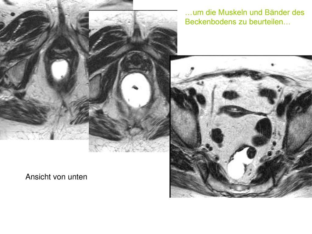 Tolle Anatomie Des Beckenbodens Zeitgenössisch - Menschliche ...