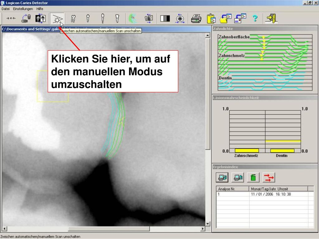 Beste Gelbe Drahtmutter Kapazität Bilder - Schaltplan Serie Circuit ...