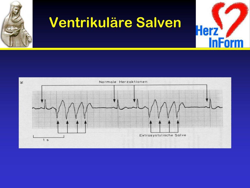 ventrikuläre salve ekg