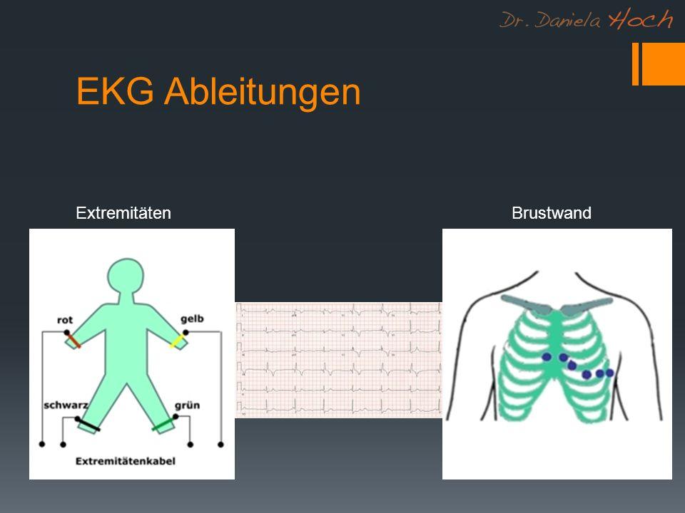 EKG Ableitungen Extremitäten Brustwand