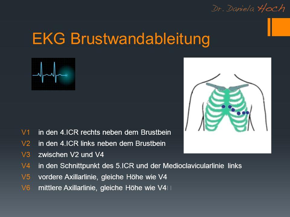 EKG Brustwandableitung